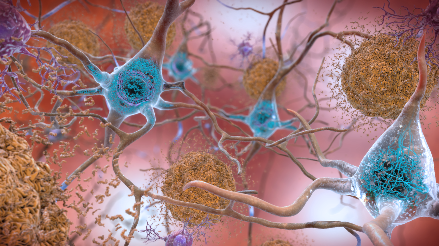 Alzheimer's Biomarkers Move Ahead In Research : Shots