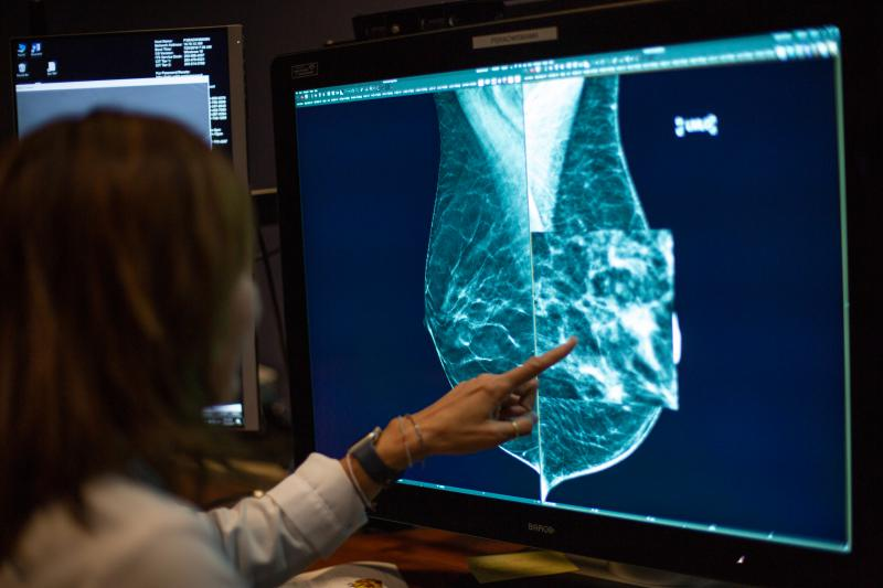 New Breast Cancer Screening Laws, Technology Give Advocates Hope In Closing Gaps In Care