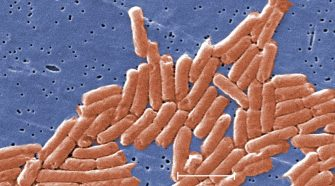 Health Officials Sound Alarm Over Deadly Drug-Resistant Strain Of Salmonella – CBS Pittsburgh