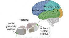 Schizophrenia: Is the Thalamus Misleading the Ear?