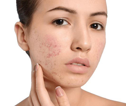 Are you breaking out? These surprisingly simple reasons could be why you have adult acne 4