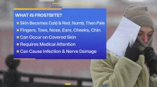 Expert weighs-in on cold related injuries with record-breaking cold incoming | FOX 4 Kansas City WDAF-TV